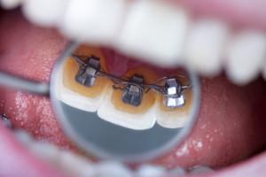 Retainer Zahnspangen Zahnarzt Finanzierung