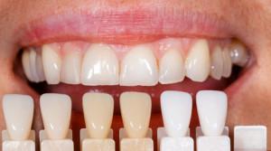 Veneers Verblendschalen Zahnarzt Sopron Györ zahnfinanzierung