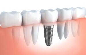 Zahnimplantat Ungarn Zahnarzt